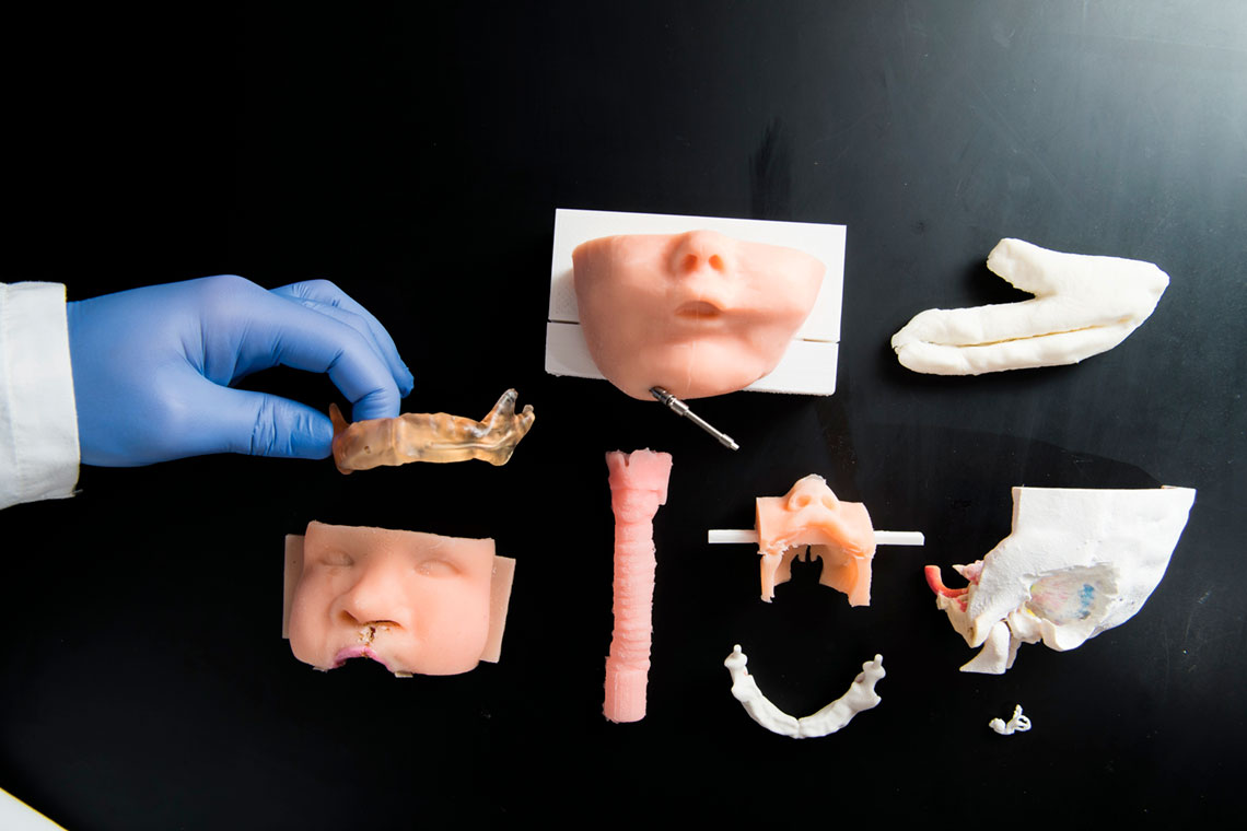 Some of the models created by the Department of Otolaryngology-Head and Neck Surgery using 3D printers.